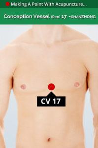 cv 17 acupiont